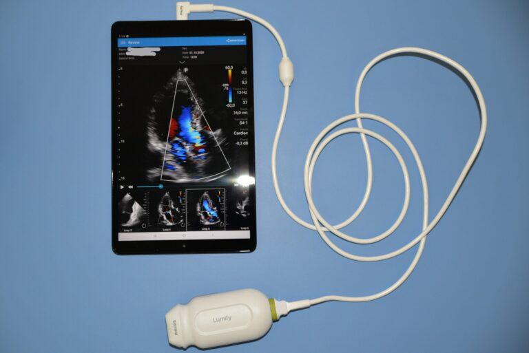 Przenośny aparat USG kardiologiczny